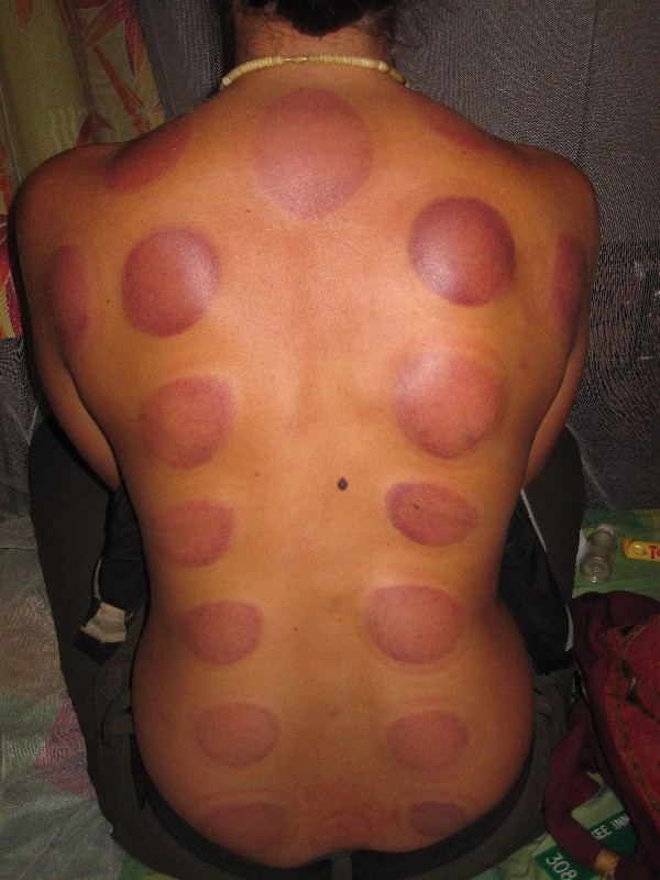 cupping-is-really-beautiful